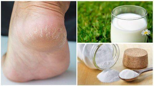 Piedi morbidi con latte e bicarbonato di sodio