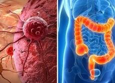 Sintomi cancro al colon
