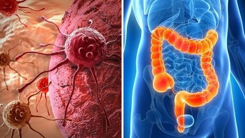 Possibili sintomi di cancro al colon