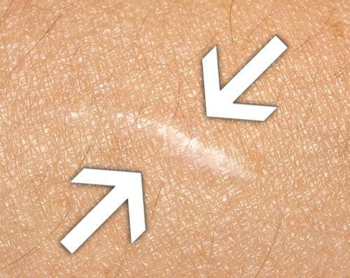 Cicatrizzare le ferite: ecco i migliori rimedi naturali