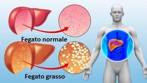 10 alimenti da includere nella dieta per depurare il fegato