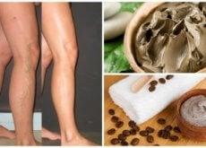gambe e rimedi per le vene varicose
