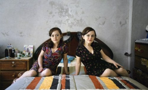 gemelle con sindrome di laron né cancro né diabete