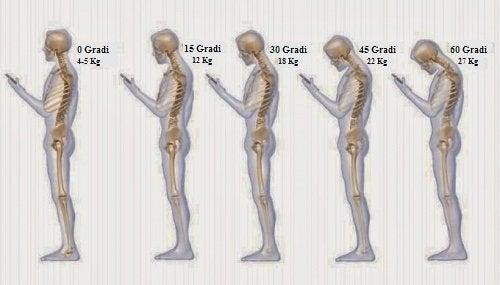 6 abitudini che provocano dolore al collo