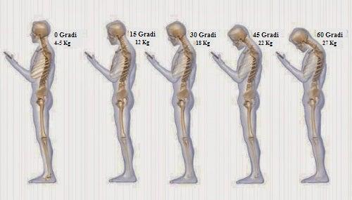 6 abitudini che danneggiano il collo