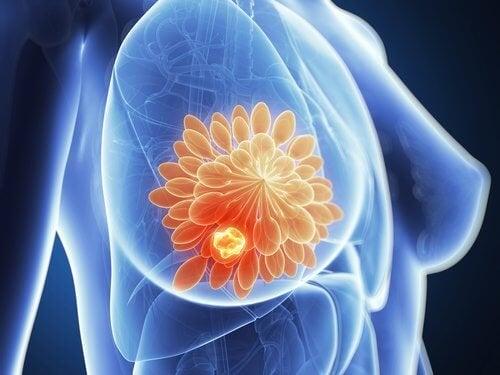 seno con mastectomia