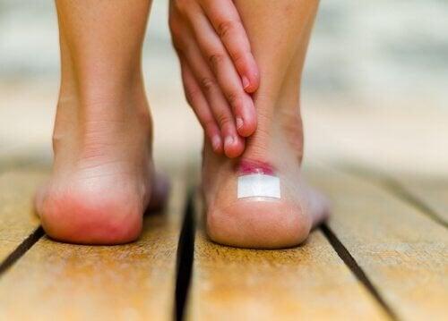 vesciche piedi burrocacao