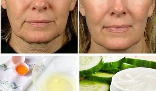 Flaccidità del viso: 5 rimedi fatti in casa per combatterla