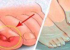 6-rimedi-fatti-in-casa-contro-le-unghie-incarnite