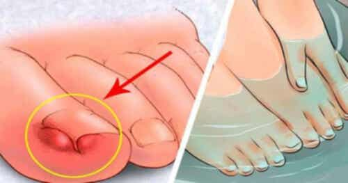 Combattere le unghie incarnite: 6 rimedi fatti in casa