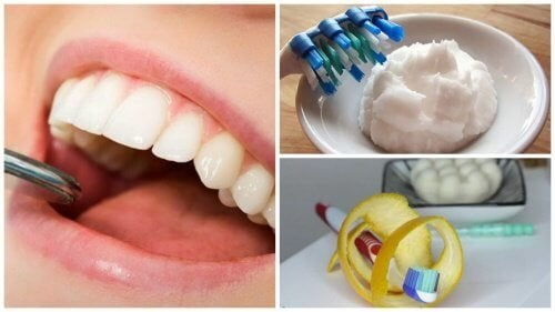 Rimuovere il tartaro dai denti in 6 mosse