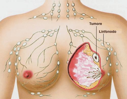 Combattere il cancro al seno con i probiotici