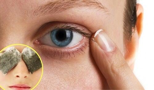 Rimedi naturali per eliminare le occhiaie