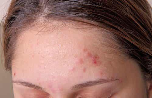 Sovraccarico di tossine: 9 sintomi