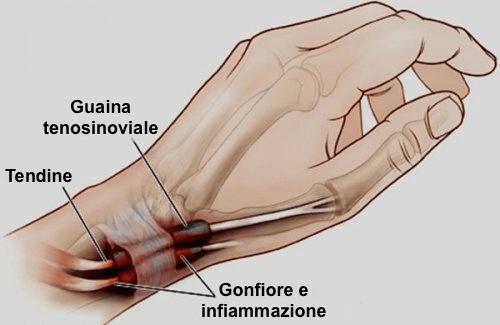 Tenosinovite: l'infiammazione delle mani o dei piedi