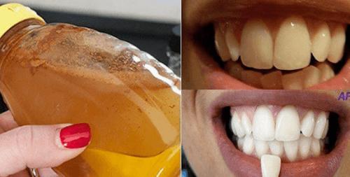 Come sbiancare i denti con l'aceto di mele