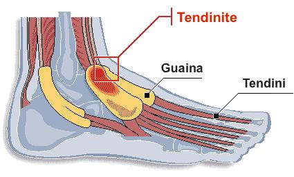 La tenosinovite è un'infiammazione del rivestimento della guaina che circonda il tendine