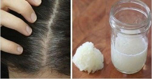 Trattamento naturale per alleviare la caduta dei capelli