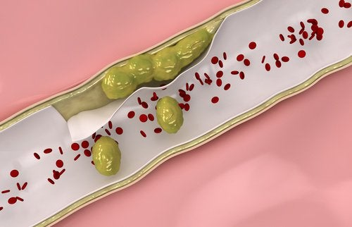 9 alimenti da assumere per pulire le arterie