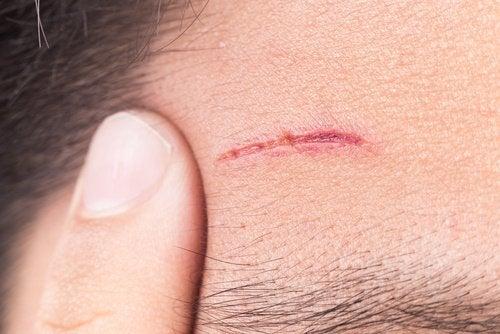 cicatrice-causata-da-diabete