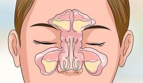 Liberare il naso chiuso velocemente e in modo naturale