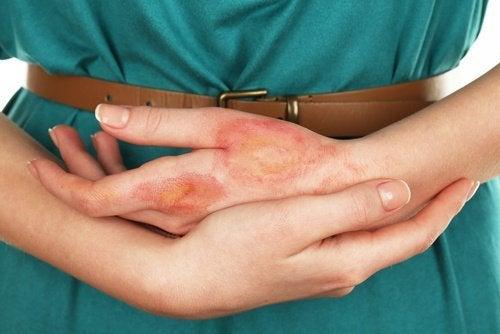 infezione tumore della pelle