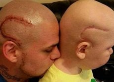 padre-si-fa-tatuare-la-cicatrice-del-figlio-operato-cancro