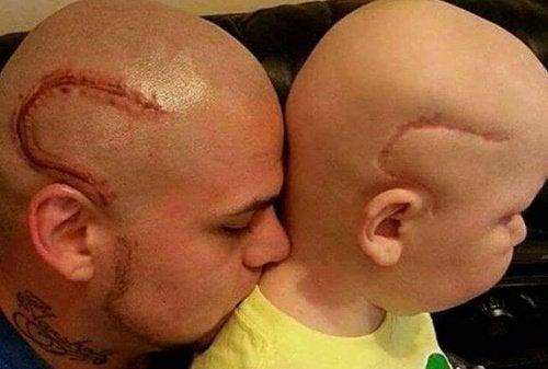 """""""Ora siamo uguali"""": padre si fa tatuare la cicatrice del figlio, operato di cancro"""