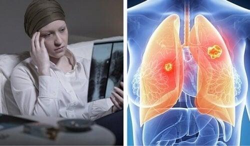 Il cancro ai polmoni colpisce soprattutto le donne