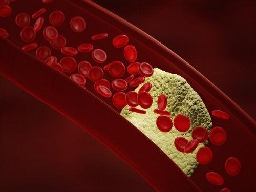 combattere-colesterolo-e-pressione-alta-con-aglio