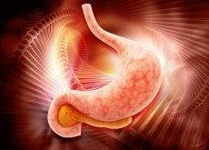 cancro allo stomaco