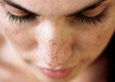 macchie sul viso di donna