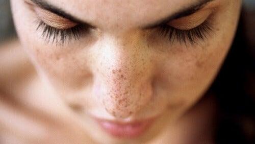 Macchie della pelle: 6 soluzioni per rimuoverle