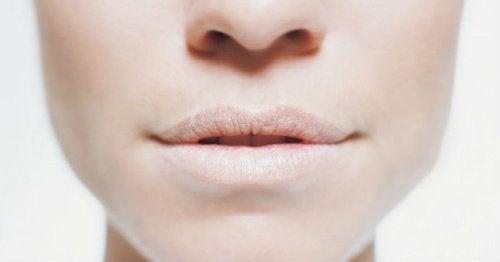 bocca-disidratata