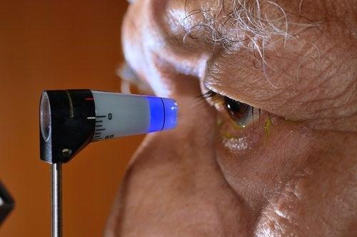 Prevenire il glaucoma in modo naturale