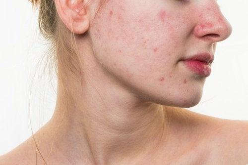 Abitudini alimentari che danneggiano il viso