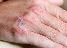 psoriasi malattie autoimmuni