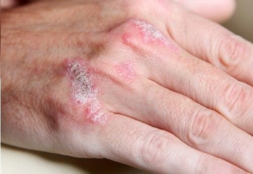 Malattie autoimmuni: 5 segni da non trascurare