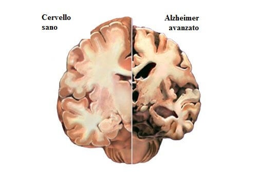alzheimer-cervello