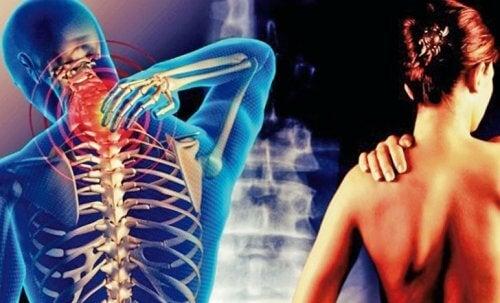 Cervicobrachialgia: quel dolore che va dal collo al braccio