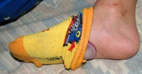 Dormire con una cipolla sotto i piedi: 4 benefici