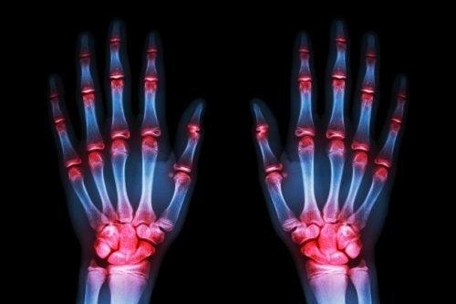 Notizie dalla Scienza: frenare l'artrosi, una possibilitàsempre più reale