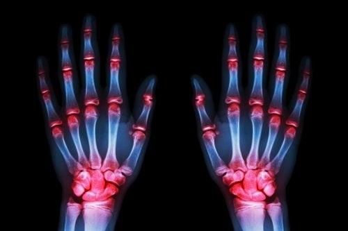 Scienza: cura in grado di frenare l'artrosi