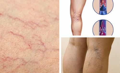 Salute vascolare delle gambe: come prendersene cura