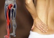 dolore-sciatica nervo sciatico