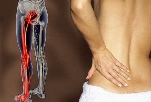 Nervo sciatico Infiammato Cause e Rimedi per la sciatica