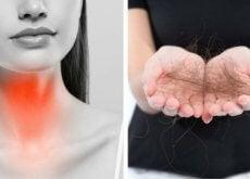 problemi-alla-tiroide-perdita-di-capelli
