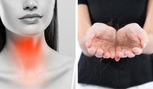 8 consigli contro la caduta dei capelli in caso di problemi alla tiroide