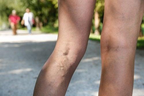 perchè si vedono le vene sulle gambe