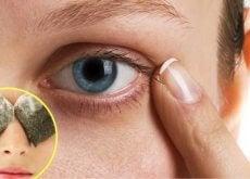 rimedi-contro le occhiaie
